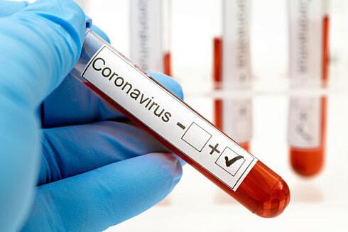 În județul Suceva sunt aproape 1500 de bolnavi Covid Două localități au rata de inectare de peste 6 la mie