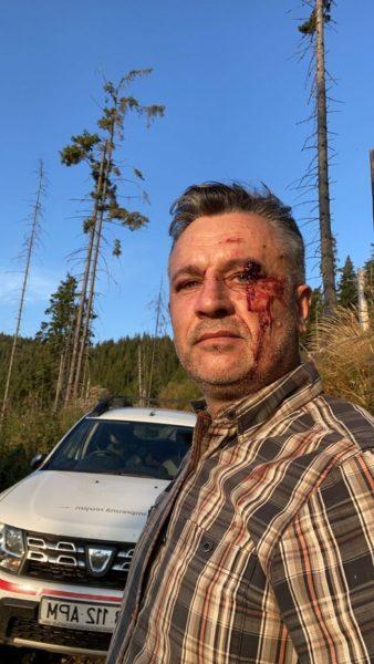 Suceava Cei patru bărbați reținuți inițial pentru agresarea a doi jurnaliști și a unui activist de mediu au fost eliberați