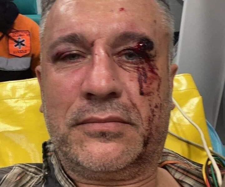 Un activist de mediu și doi jurnaliști bătuți crunt cu furci și topoare de mafia pădurilor
